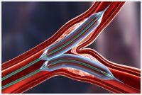 PTCA球囊扩张导管